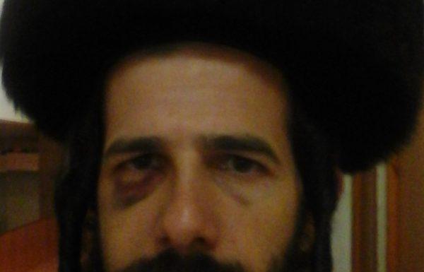 """נחמן פישמן תקף באכזריות את הרב החסיד יהושע גרוס שליט""""א"""
